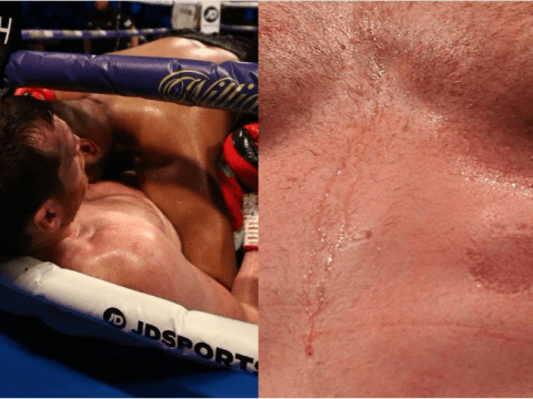Kash Ali sees boxing licence suspended after biting David Price during fight