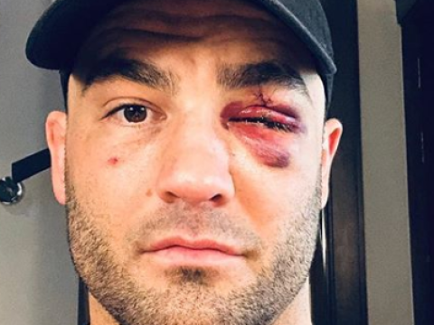 Eddie Alvarez felt like his eye exploded in ONE Championship defeat