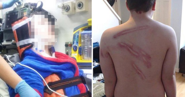 The boy suffered injuries across his body in the brutal attack