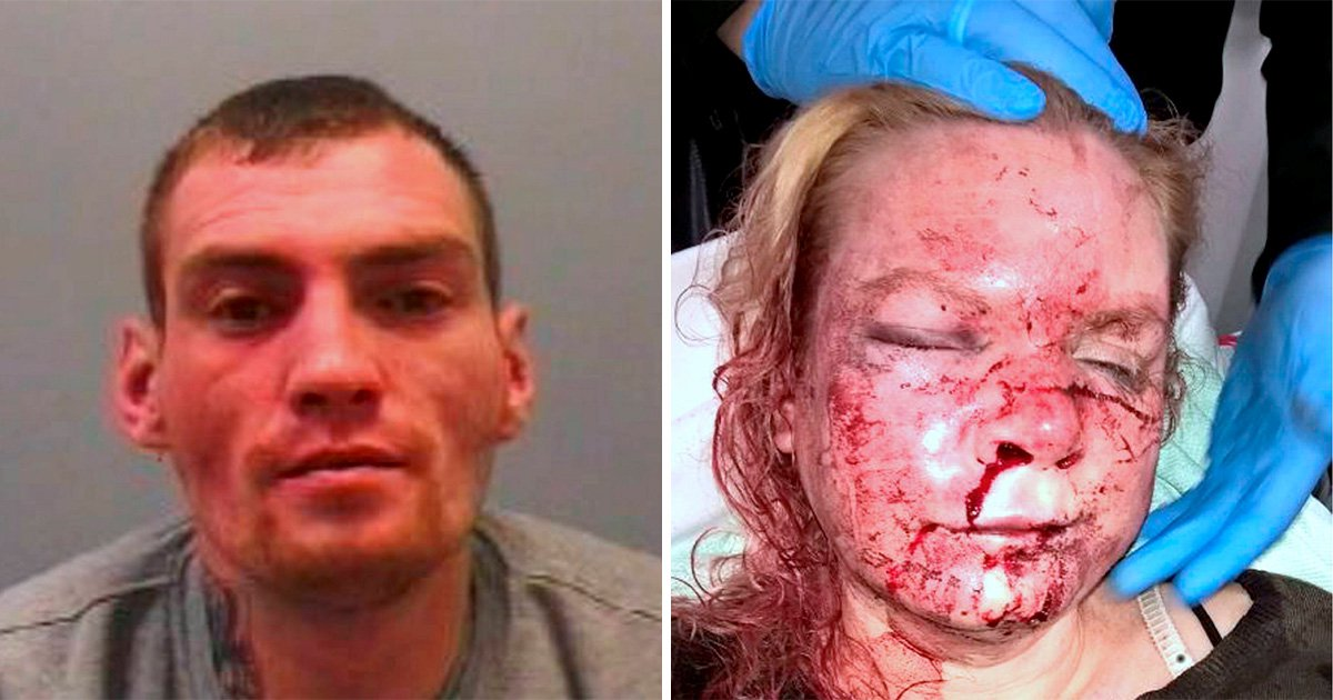 Woman beaten by ex helped jail him with silent 999 call