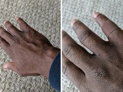 Man has to hold back tears after finding a plaster that comes in his skin tone
