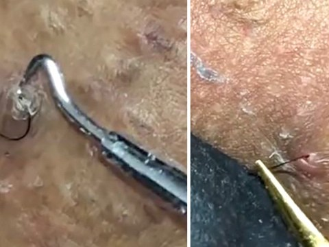 Pus streams out of woman's bikini line as ingrown hairs are pulled out