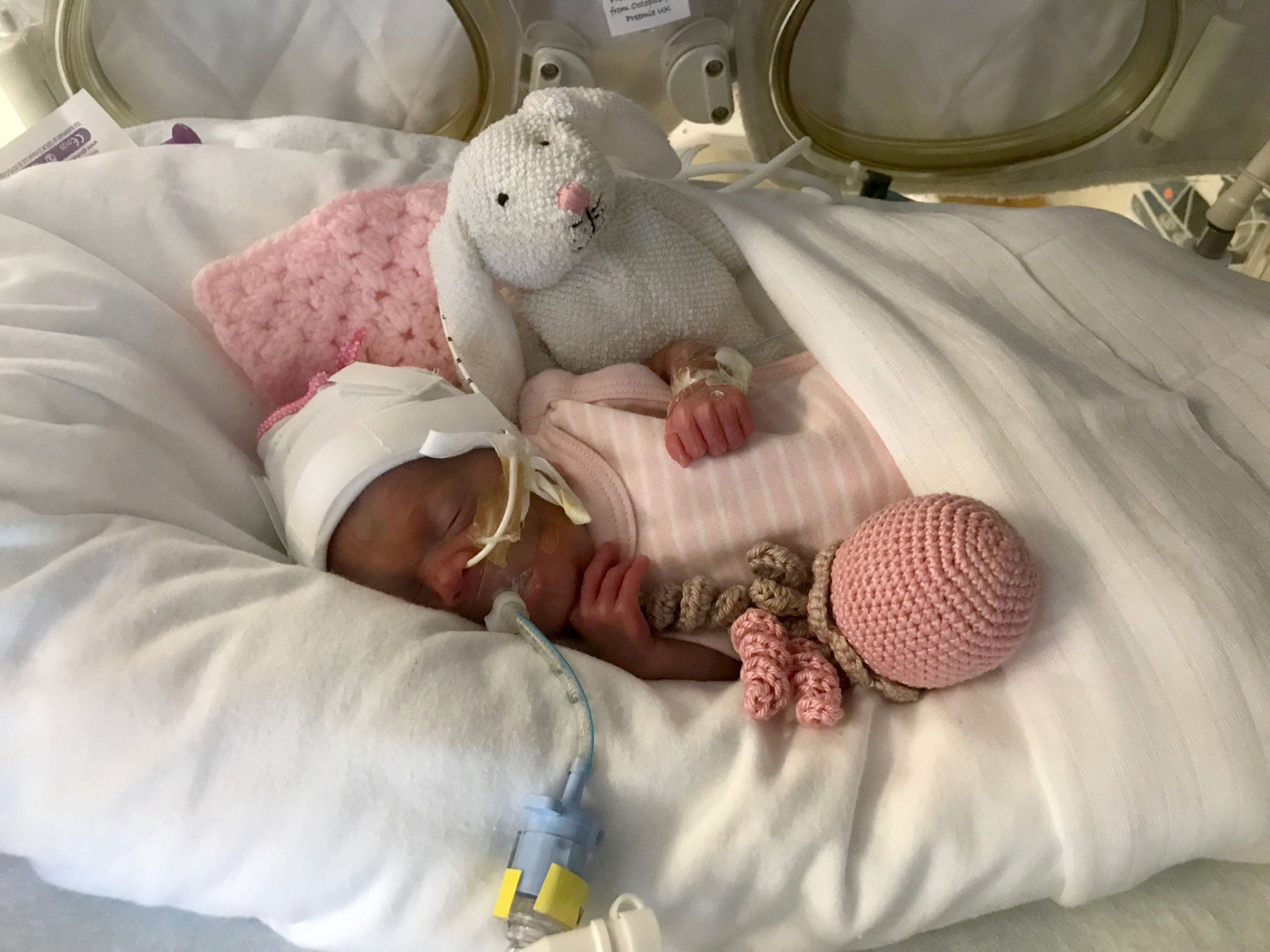 PIC FROM Caters News - (PICTURED: Amelia Osbourne, from Tamworth, Staffs, in hospital) -A miracle premature baby born so small she fitted inside her fathers palms and was tinier than her toy rabbit has celebrated her first birthday.Amelia Osbourne, now one, was born on February 27 last year at just 26 weeks gestation and weighing a tiny 1lbs99oz less than a bag of sugar after mum Louise Edkins went into hospital for a routine check-up when she couldnt feel the her moving.SEE CATERS COPY