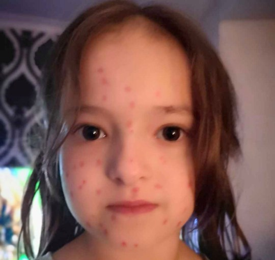 PIC FROM KENNEDY NEWS AND MEDIA (PICTURED: LILY SCHOOLEY, SIX, COVERED IN RED PERMANENT MARKER 'CHICKEN POX') This crafty schoolgirl's sick day attempt backfired when she was stained head to toe in red blotches for four days - after drawing on 'chicken pox' in permanent marker. Little rascal Lily Schooley, six, had noticed some of her friends taking days off for chicken pox and decided to try her luck. So after a tiring day at school last week, Lily borrowed a red permanent Sharpie to 'do her homework'.SEE KENNEDY NEWS COPY - 0161 697 4266