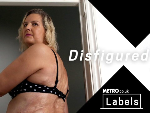 My Label and Me: Being called disfigured may make you uncomfortable, but I love it