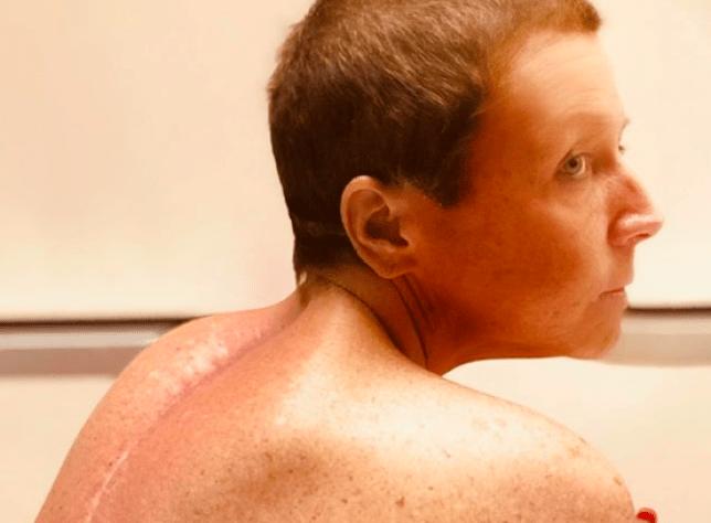 Abby Lee Miller shares surgery scar