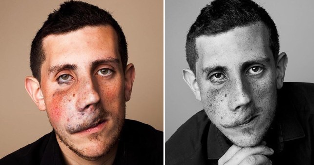 Split image of two profile photos featuring Rory McGuire, a campaigner for Changing Faces