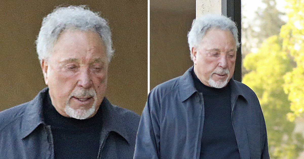 Tom Jones pictured with bruised eye in midst of US tour as he takes a break in California