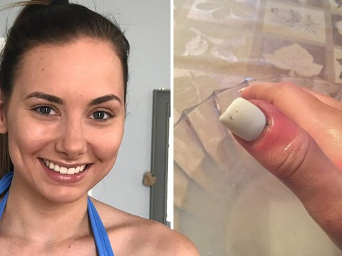 Woman's 'bruise' on her thumbnail was a sign of skin cancer