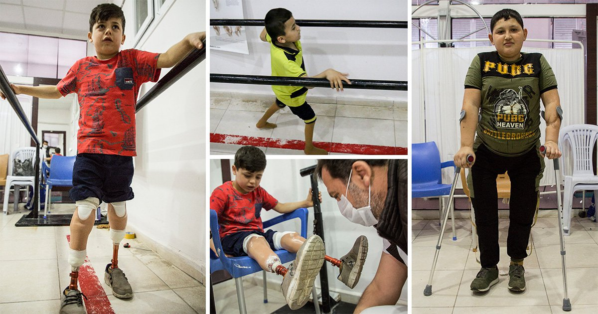 Children recovering from blast injuries in Syria