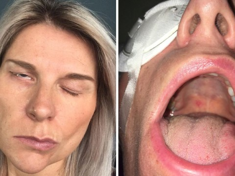 Nurse woke up paralysed on one side of face after going to bed with cough