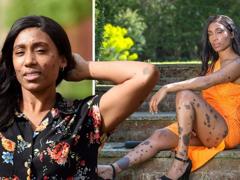 Mum bullied for rare condition that causes large moles is signed to modelling agency