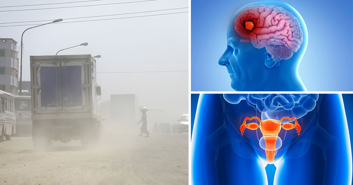Air pollution harms 'every organ in the body' say scientists