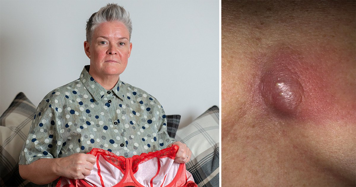 Woman says she was left with a gaping hole in her chest thanks to tight underwire bras