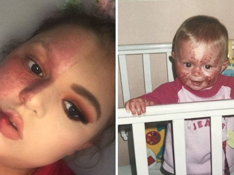 Woman bullied for head-to-toe birthmark says new friends made her feel confident enough to go out without makeup