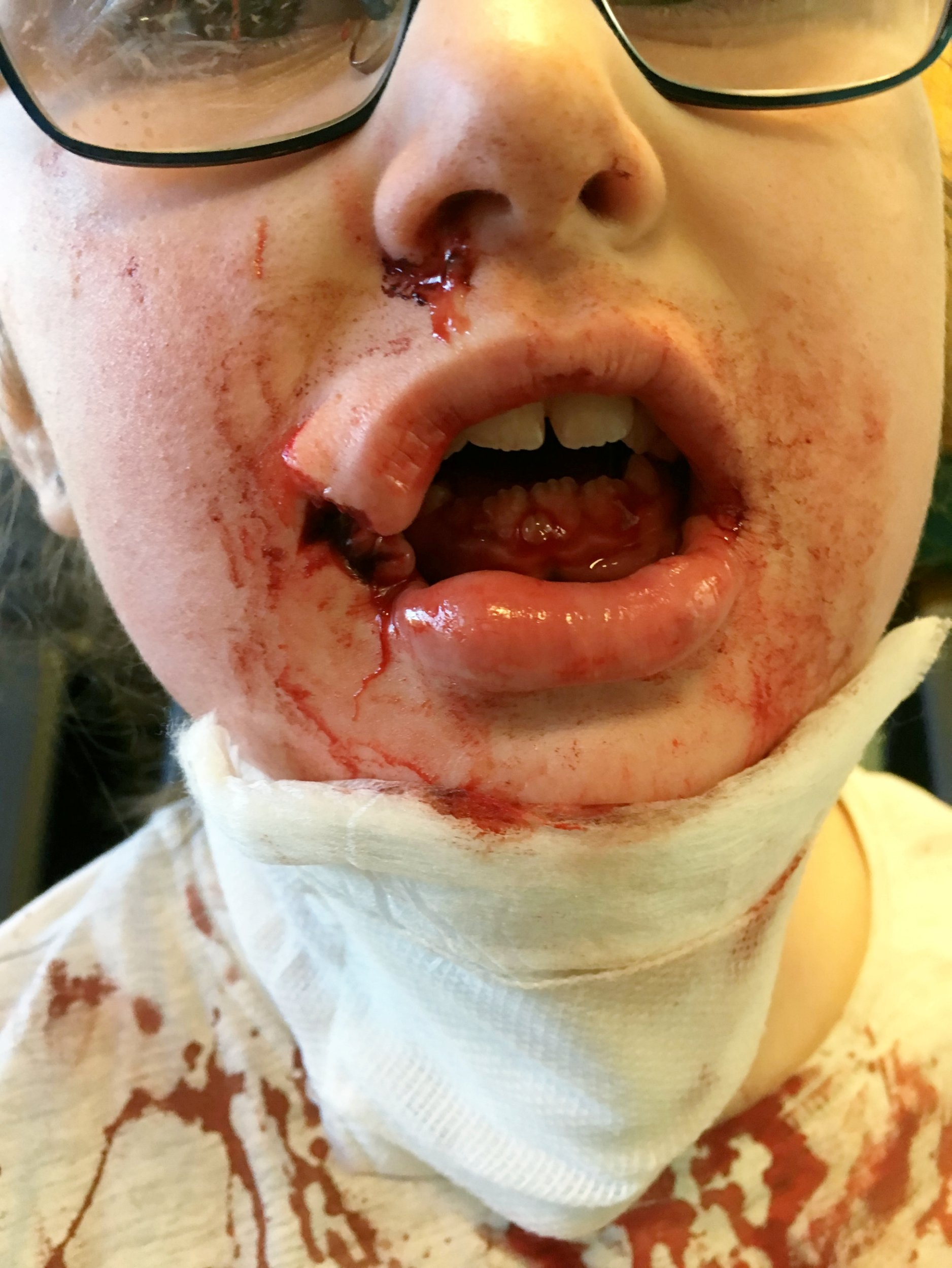 """Kiera Woodhouse,7 of Nottingham, the day of the dog attack 2018. An autistic schoolgirl has been left """"mentally scarred"""" after she was left with horrific facial injuries from a vicious dog attack. See SWNS story SWMDmaul. Kiera Young, 7, had her lip ripped off after stoking a white and black Akita outside the Witham Tavern, Boston, on February 27 just after 2pm. Her grandmother Sharon Young, 57, had taken her to the pub for her sister Debbie Hayes 60th Birthday. The mum-of-two, from Nottingham walked, whilst Kiera was driven down by Debbie. The 57-year-old said she heard her granddaughter screaming across the river and dashed to the scene. She saw Kiera bleeding from her mouth and rushed her to Pilgrim Hospital, Boston, where her wounds were cleaned. The youngster, spent nearly three hours in surgery at Lincolnshire Hospital the next day to repair her facial injuries. Kiera was diagnosed with autism at the age of three and struggles to eat and keeps her distance when ever she see a dog in the street since the attack. Sharon, who been Kiera's carer since she was 11 months old, said she has still not received an apology from the dog's owners."""