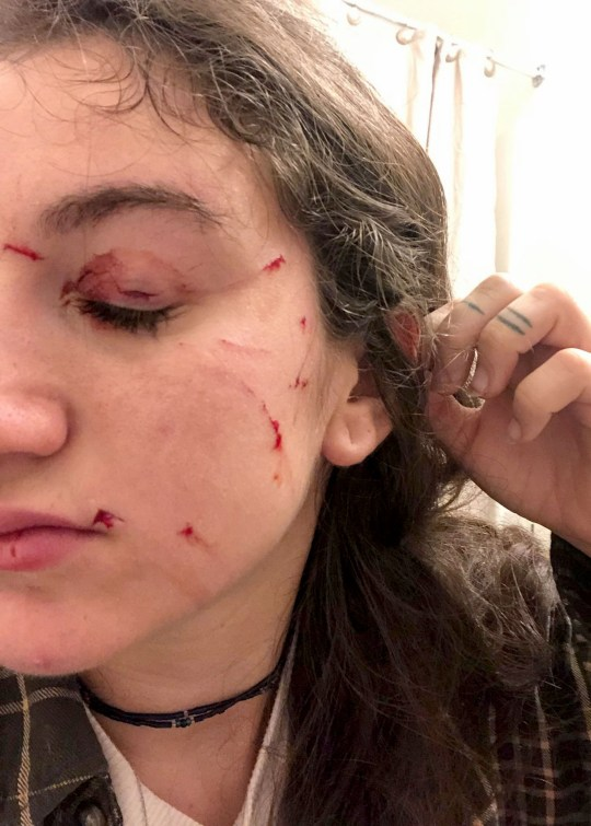 PIC FROMAnna Colarusso/Caters News - (PICTURED: Anna Colarussos face after being attacked by her cat Sam) - This is the bizarre moment an angry cat attacked his hiding owner moments after she came out of a suitcase. Anna Colarusso, 21, from Lagrangeville, New York, just got back from her vacation when she decided to show her boyfriend how big her suitcase was by climbing inside of it. Little did she know her cat, Sam, aged seven, would be so terrified seeing her popping out of the bag that he would start attacking her relentlessly.SEE CATERS COPY