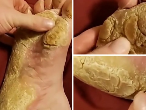 Grim video shows someone picking at the thick yellow skin on their foot
