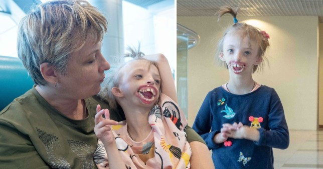 Russian girl, 6, born without half her face flies to London for pioneering medical treatment
