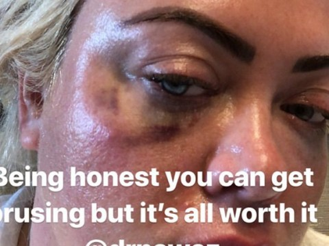 Gemma Collins sports black eye after undergoing painful 'tear trough' fillers under her eyes