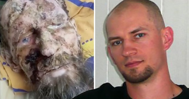 Man who looks like a mummy has 'psoriasis and was never attacked by bear'