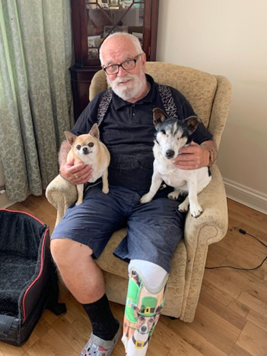 PIC FROM Mercury Press - (PICTURED: Michael Jackson, 72, from Langtoft, Lincs, with his dogs Rosie, 12 (right) and Chihuahua Alice, 9, (left) , showing his prosthetic leg with an image of his dog Charlie on ) - A biker dad left devastated by the death of his favourite dog has been reunited with him in spirit after having the pooch's face SUPERIMPOSED on his prosthetic leg. Retired bus driver, Michael Jackson, 72, from Langtoft, Lincs, lost beloved Jack Russell-Chihuahua cross Charlie just a month before his leg had to be amputated after a horror motorbike smash in September 2017.Dad-of-one Michael was so close with the pooch he had a special device fitted to his bike so that they could ride together and was left heartbroken when Charlie died of a heart attack in his arms.SEE MERCURY COPY