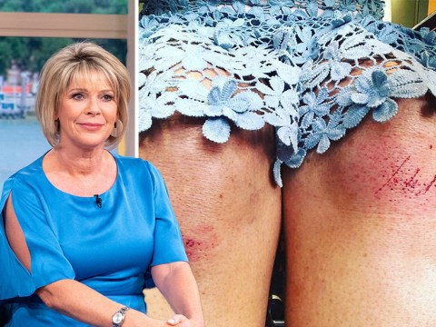 Ruth Langsford 'a bit shaken and stirred' after 'embarrassing' fall at Epsom Derby that left her with cut knees