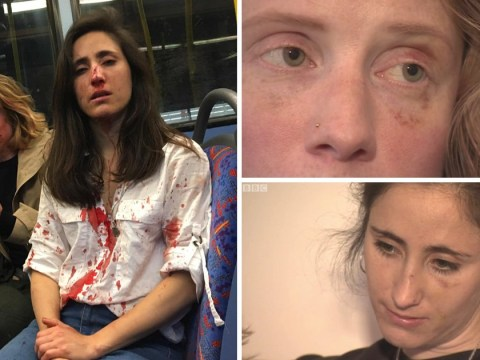 Lesbian couple sent horrendous homophobic messages by trolls after bus attack