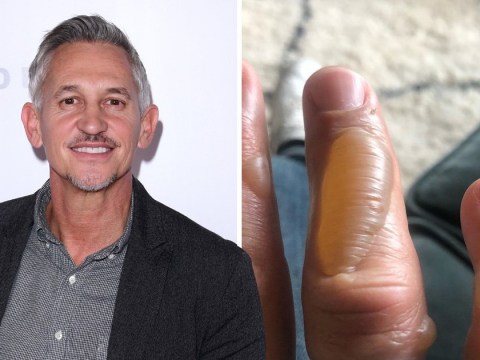 Gary Lineker shows off horrific blistered fingers after burning himself cooking