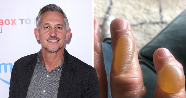 Gary Lineker reveals gruesome injury after burning hand cooking
