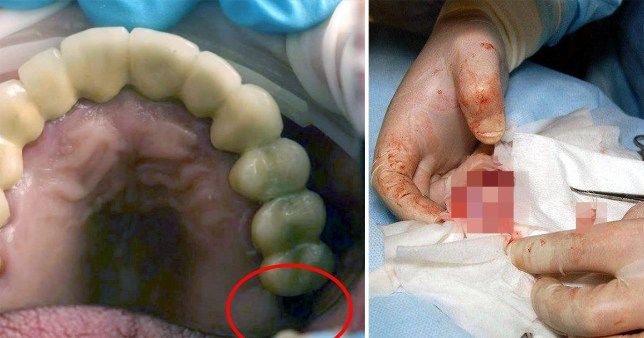 Doctors discovered he was missing the molar in his mouth and it had instead grown inside his testicle