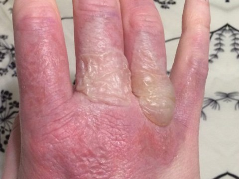 Woman's blistering burns are a reminder to be careful making margaritas this summer