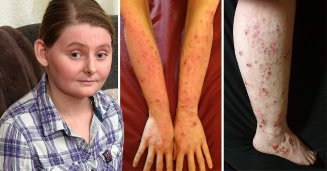 Laura Weaver has spent a lifetime applying seven different types of cream to her body in order to keep the crippling eczema at bay (Picture: Caters News)