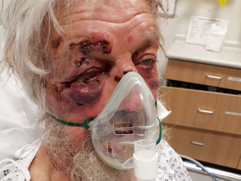 Pensioner knocked out in road rage attack says attacker is 'complete a***hole'