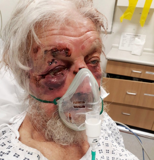 Paul Eva, 80, who suffered multiple injuries, including a broken wrist, nose and cheekbone in what detectives have described as a nonsensical road rage attack in a street in Penge, south-east London.