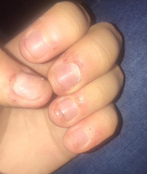 Teenager Shares Her Ragged Fingers To Warn Of Risks Of