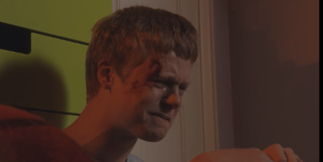 Bobby Beale is hurt in