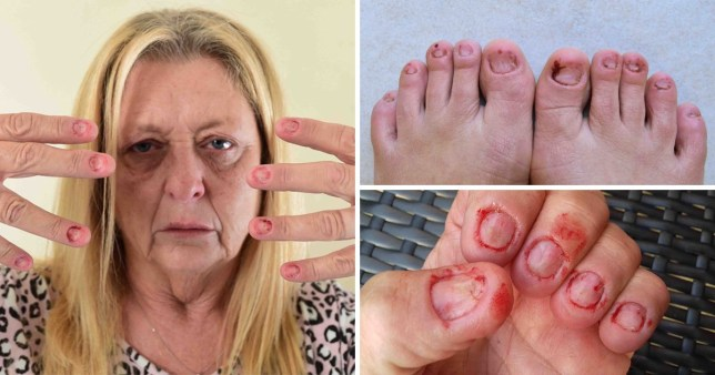 Woman loses all her finger and toenails to mystery condition