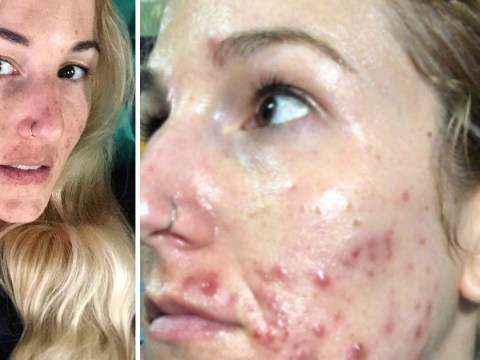 Woman who developed cystic acne in her 30s abandons heavy makeup and camera filters