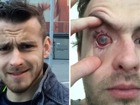 Man blinded by parasite living in his eye after he showered with contact lenses in
