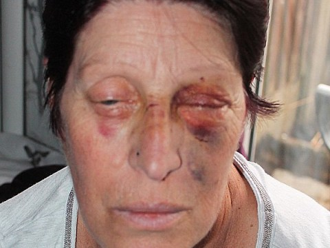 Dementia sufferer beaten after she confronted thug over 'out of control dog'