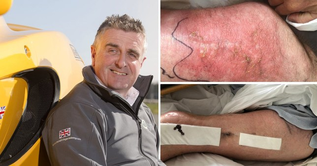 Injuries to Martin Donnelly, 55 after the moped accident (Picture: SWNS)