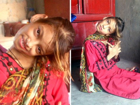 Girl with head bent at 90 degrees still waiting for surgery two years on