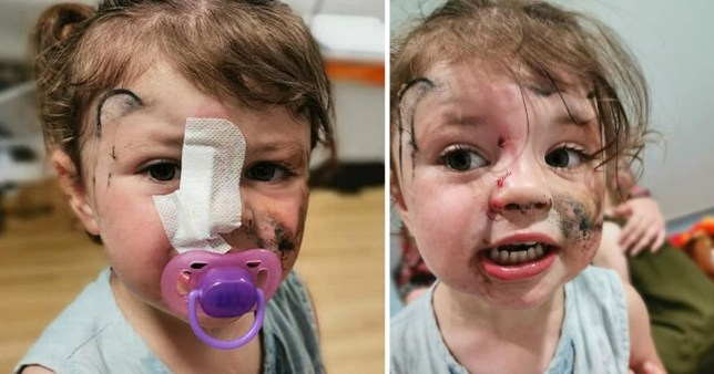 Toddler Isla Williams after she was bitten