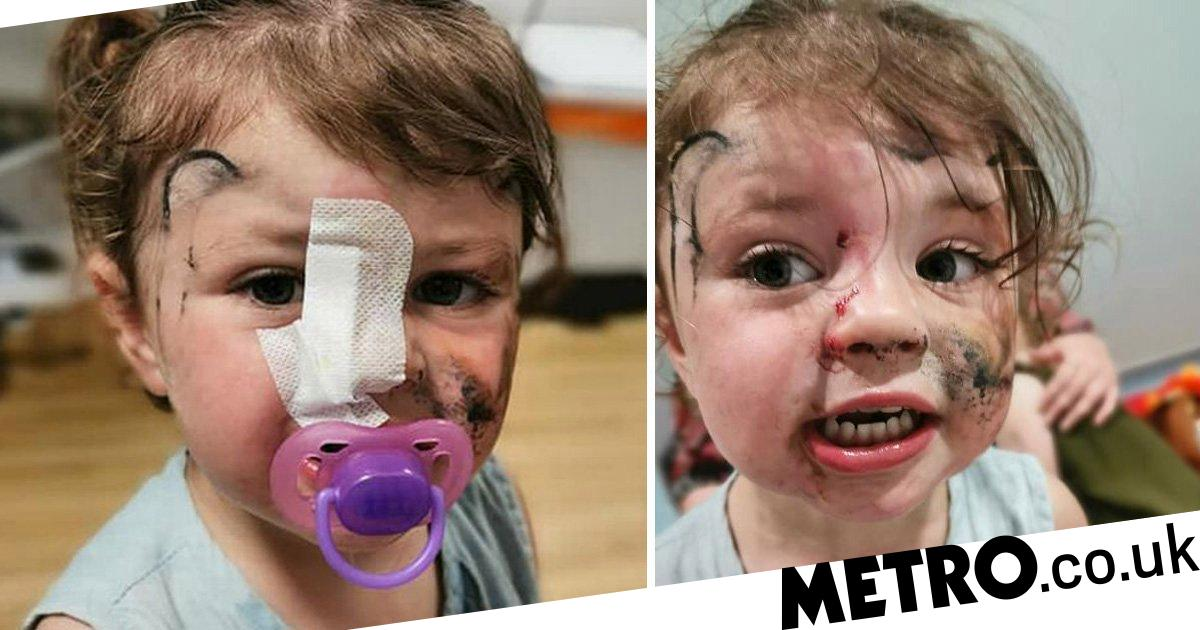 Toddler nearly blinded when dog attacked after she gave it a stroke