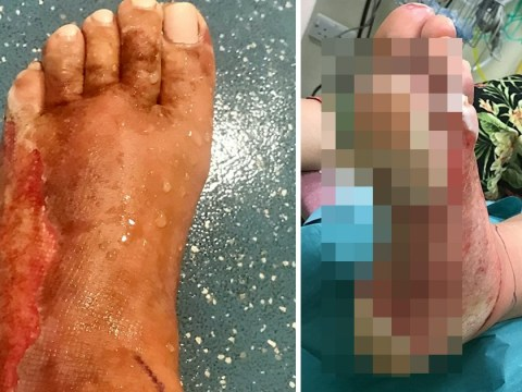 Woman's foot starts flaking off after stepping on sand where disposable BBQ had been