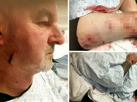 Disabled grandfather attacked with hammers by masked men who mistake him for someone else