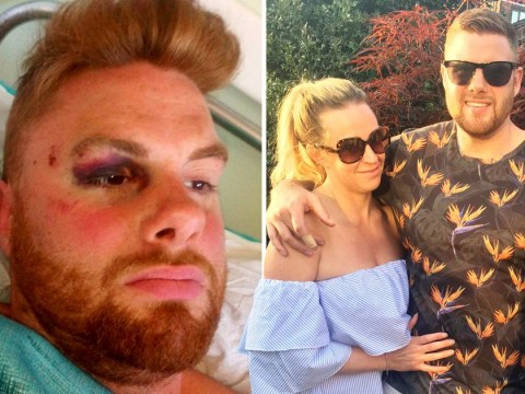Brit forced to miss his wedding after plunging 14-foot off balcony in Greece