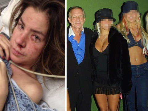 Ex-Playboy model drank vodka round the clock until body started eating itself