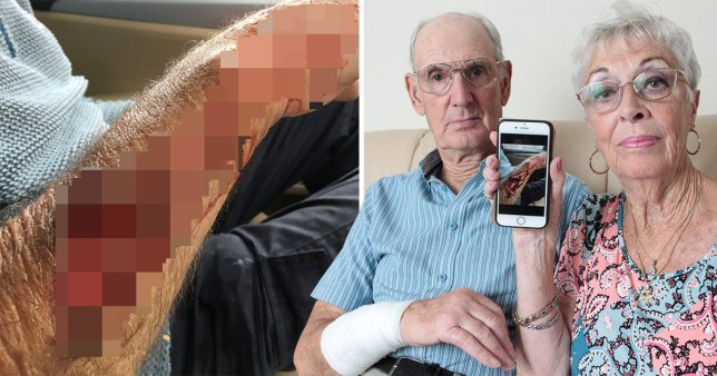 The shocking wound to Charles Brown, with his wife Ann, is too graphic to show